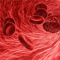 Nồng độ cholesterol ở mức thấp có thể làm tăng nguy cơ đột quỵ ở phụ nữ