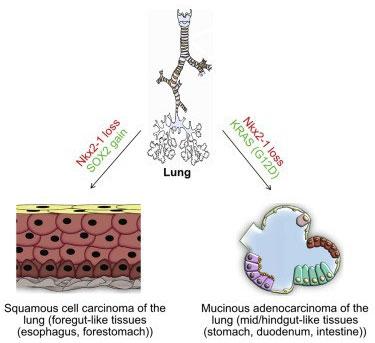 Tế bào ung thư phổi có thể biến thành tế bào cơ quan khác, để kháng thuốc đặc trị ung thư phổi.