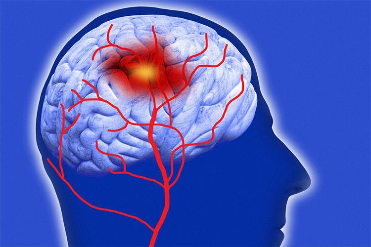 Xuất huyết não là một loại đột quỵ, khi máu đột nhiên tràn vào mô não, gây tổn thương não.