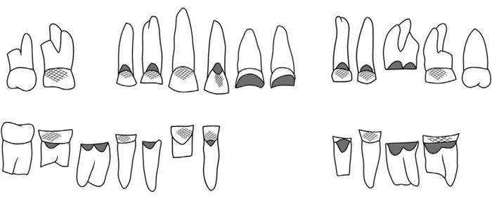 Hình dáng các loại răng người cổ đại.