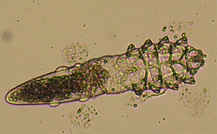 Demodex folliculorum - hay còn gọi là ve mặt