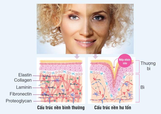 Tia UV tấn công cấu trúc nền, khiến da nhanh lão hóa, khô, nhăn, sạm.
