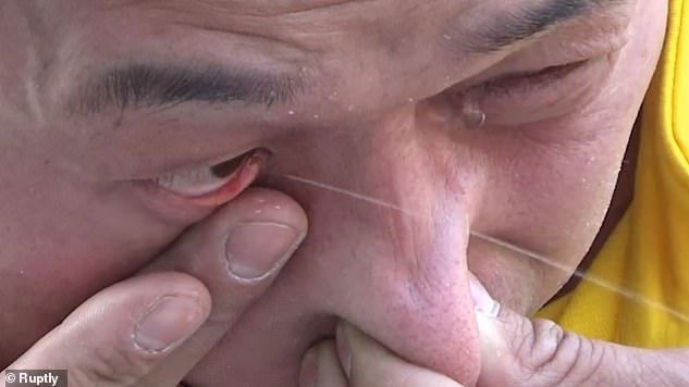 Ông Zhang phun nước qua mắt.