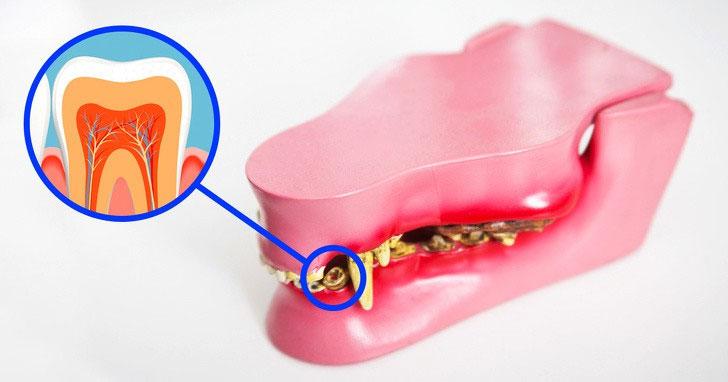 Chiếc răng mới sẽ mọc ra từ chính hốc răng cũ.