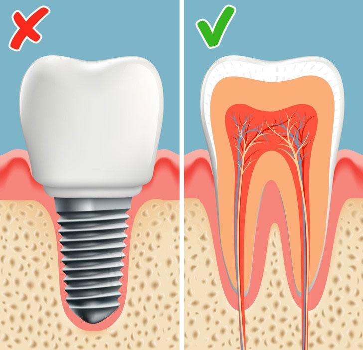 Răng được tái tạo ngay trong miệng, người được cấy sẽ tốn ít thời gian để hồi phục hơn.