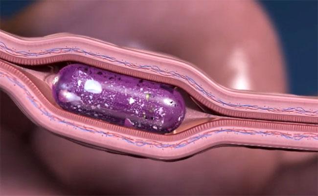Đâm kim thẳng vào thành ruột hóa ra lại là cách tiêm không đau, có thể dùng cho người tiểu đường