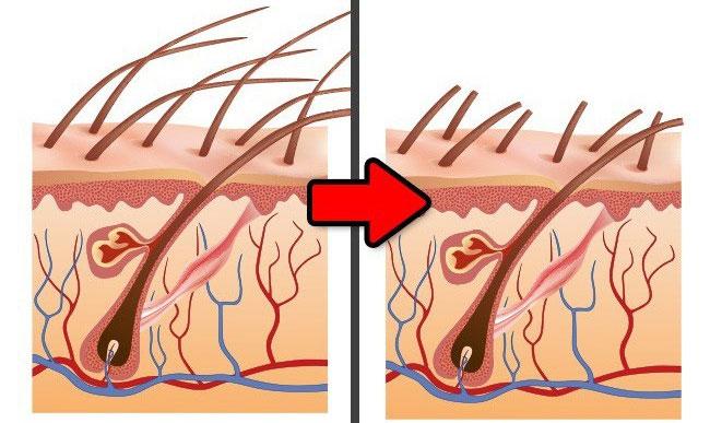 Cạo lông sẽ khiến chúng mọc lại dày hơn