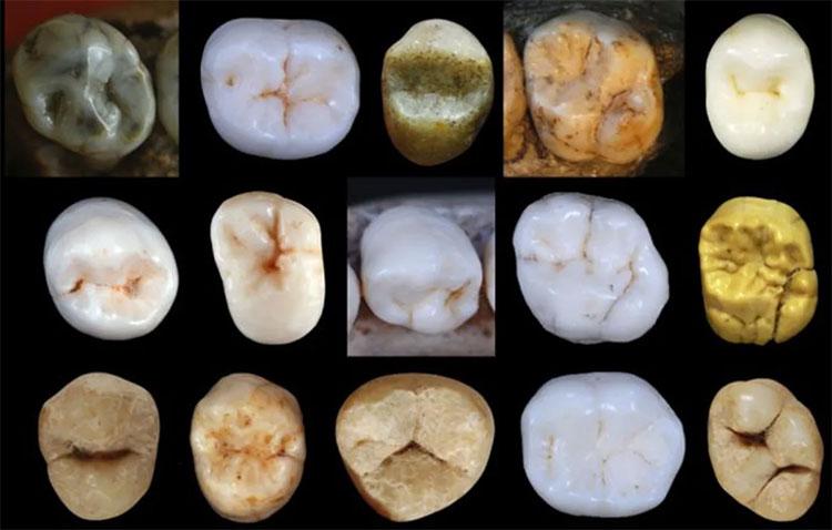 Một số mẫu răng đã tiết lộ dáng dấp một vị tổ tiên cổ xưa giữa chúng ta và loài người chiến binh Neanderthals