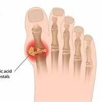 Bệnh Gout: Nguyên nhân, triệu chứng và cách điều trị
