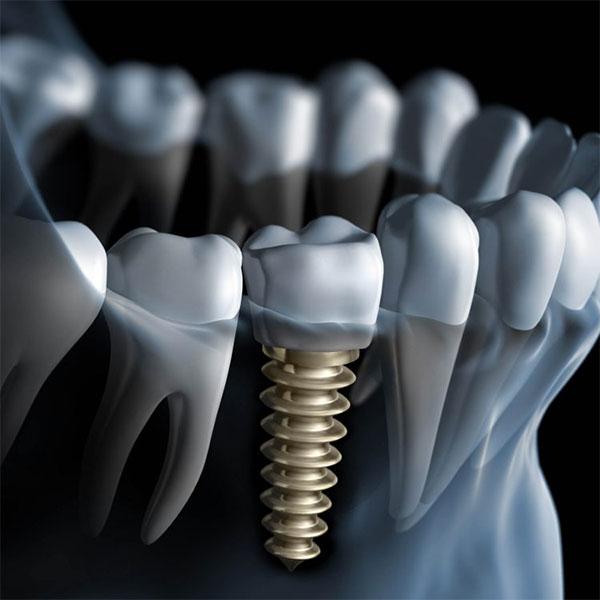 Trụ Implant càng tốt và chất lượng cao thì hiệu quả phục hình càng lâu bền.