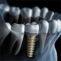 Cấy ghép răng implant là gì?