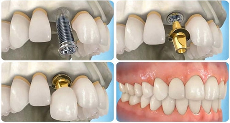Tạo hình răng Implant giống như răng thật.