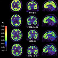Chụp cắt lớp não bộ có thể sớm phát hiện ý đồ tự tử