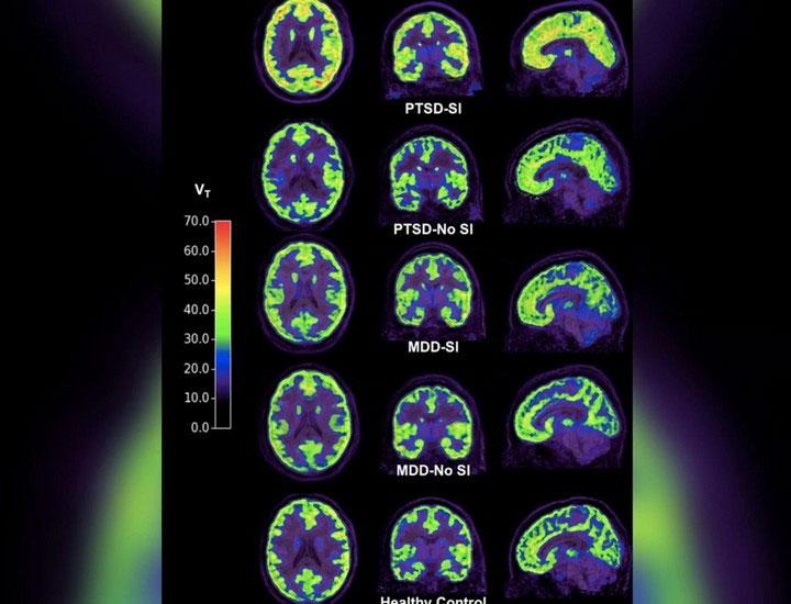Thụ thể mGluR5 hoạt động mạnh trên những người có ý định tự tử và mắc chứng PTSD