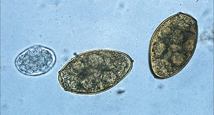 Sán lá phổi Paragonimus kellicotti từ giai đoạn trứng đến khi trưởng thành.