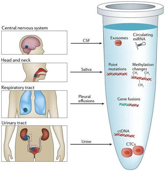 Nhiều loại ung thư có thể được phát hiện sớm nhờ sinh thiết lỏng.