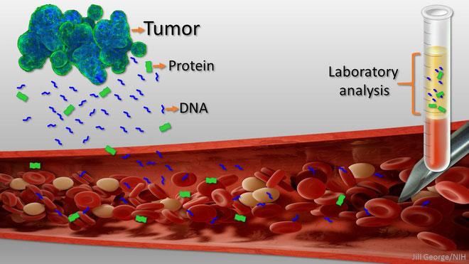 Ung thư giải phóng các DNA và protein vào máu trước cả khi các triệu chứng xuất hiện.