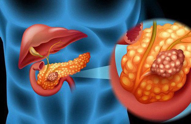 Ung thư tuyến tụy tiến triển cục bộ thường được coi là một căn bệnh nan y.