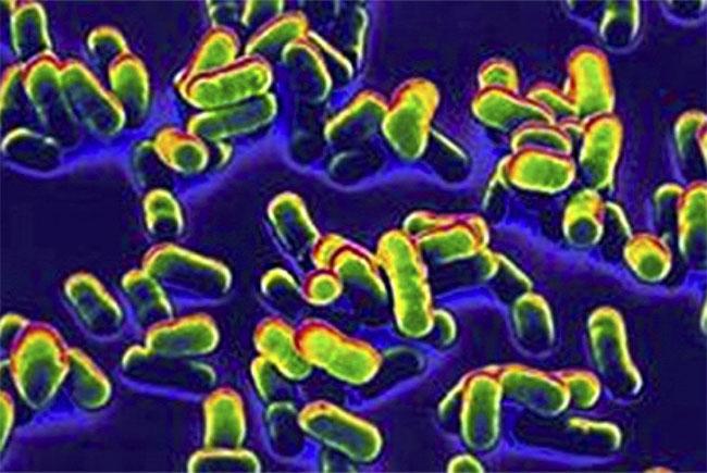 Vi khuẩn gây bệnh dịch hạch Yersinia pestis