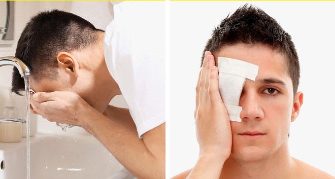 Cách sơ cứu khi mắt bị thương