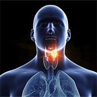 Phân biệt ung thư vòm họng và viêm họng thông thường