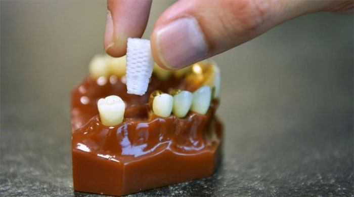 Chân răng 3D được in với chất liệu canxi, giống như kết cấu răng tự nhiên của con người.