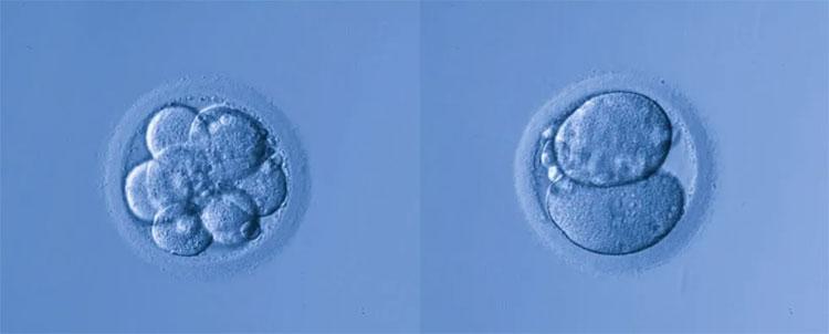 Giới khoa học đang tiếp tục tranh cãi khi một nhà nghiên cứu người Nga chuẩn bị thực hiện chỉnh sửa gene ở người.