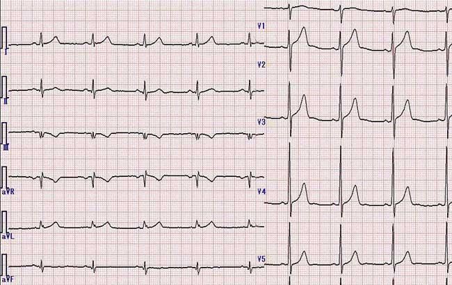 Một điện tâm đồ bình thường không thể loại trừ những tình trạng bệnh tim nghiêm trọng.