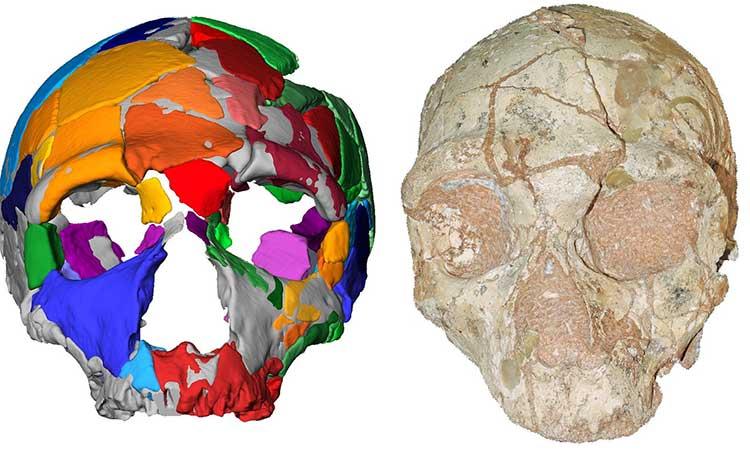 Hộp sọ bị hư hỏng nặng được kiểm tra bằng mô hình máy tính.