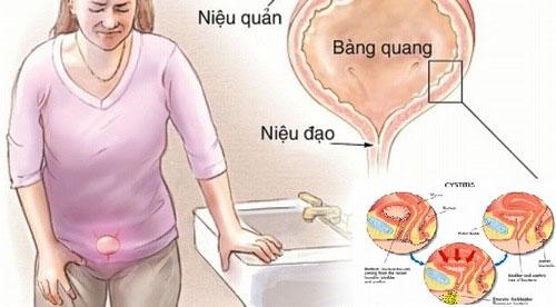 Bệnh nhiễn trùng đường niệu có thể gây ra những cơn đau đột ngột ở phần vùng bụng dưới bên trái.