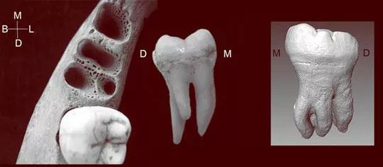 Chiếc răng kỳ dị 3 chân