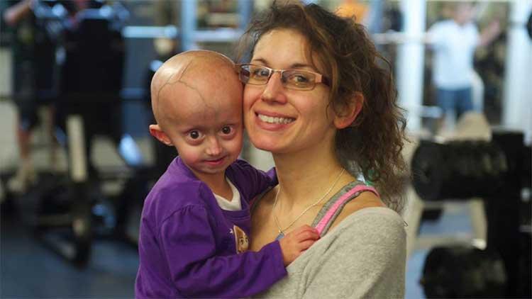 Zoey Penny mới 3 tuổi nhưng cơ thể và ngoại hình như bà lão 80 tuổi