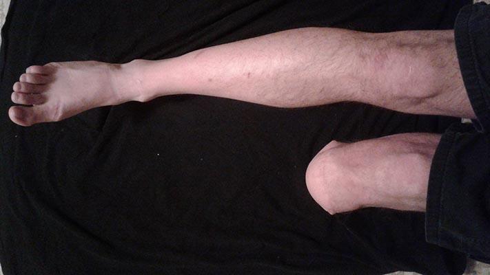 Chân trái của John bị cắt bỏ sát gần đầu gối