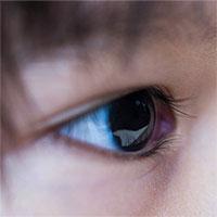 U nguyên bào võng mạc: Nguyên nhân, triệu chứng, chẩn đoán và điều trị
