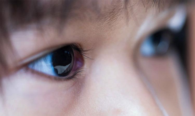 Ung thư võng mạc là một bệnh mắt ác tính gặp ở trẻ nhỏ.
