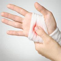 Cách sơ cứu khi bị đứt tay