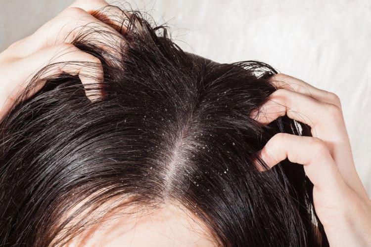 Triệu chứng của gàu rất dễ thấy, đó là những mảng da chết màu trắng nằm trên tóc.