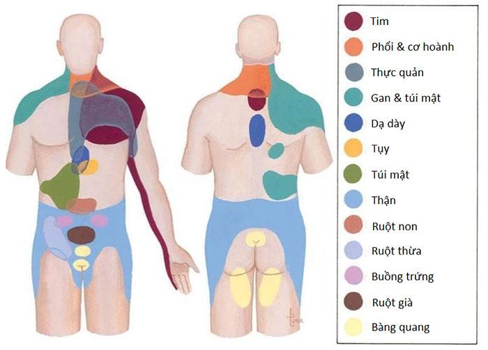 Bản đồ phác họa liên hệ giữa vùng da bị đau với bộ phận bị tổn thương.