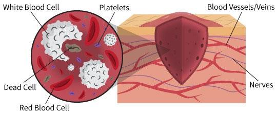 Các tế bào máu tham gia vào việc làm lành vết thương.