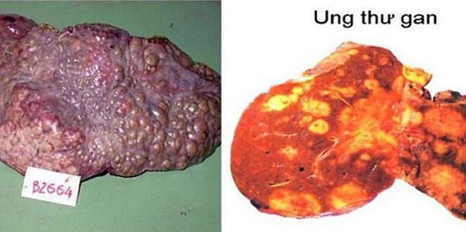 Hình ảnh gan bị các khối u xâm lấn.
