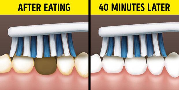 Đánh răng sau ăn