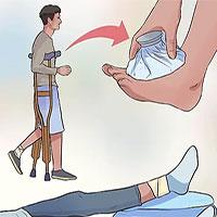 Cách sơ cứu người bị bong gân, trật khớp