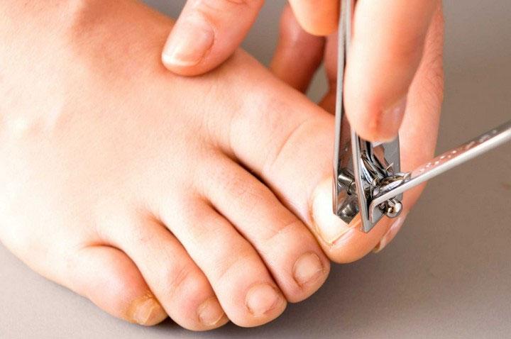 Cách làm đúng khi cắt móng chân, móng tay, đó là làm sao để tránh các vấn đề về chân.