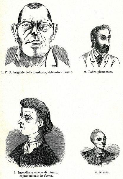 """""""Đôi tai thường có kích thước lớn hơn, mũi thường hếch"""", bác sĩ Lombroso mô tả."""