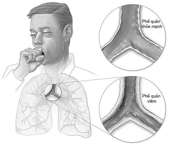 Bệnh viêm phế quản co thắt có thể gây ra nhiều biến chứng.
