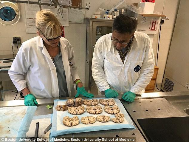 McKee và một loạt các lát cắt não bộ hiến tặng