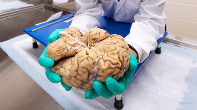 Bí ẩn bên trong những lát cắt não của cầu thủ bóng bầu dục