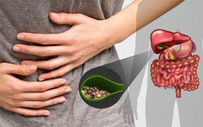 Sỏi mật là một trong các bệnh dễ gây nên các biến chứng nguy hiểm