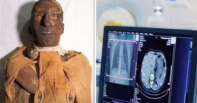 Vua Ramses III chết bởi vết cắt ở cổ.