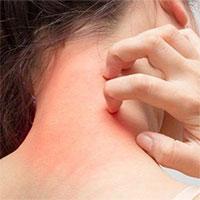 13 nguyên nhân gây ngứa khắp người càng gãi càng ngứa